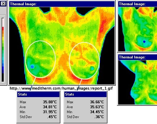 thermal mammogram